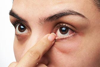 Olho seco é mais comum no verão?