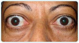 Olhos Inestésicos