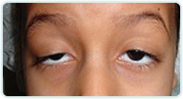 tratamento de glaucoma em salvador